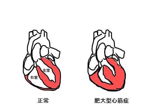 肥大型心筋症